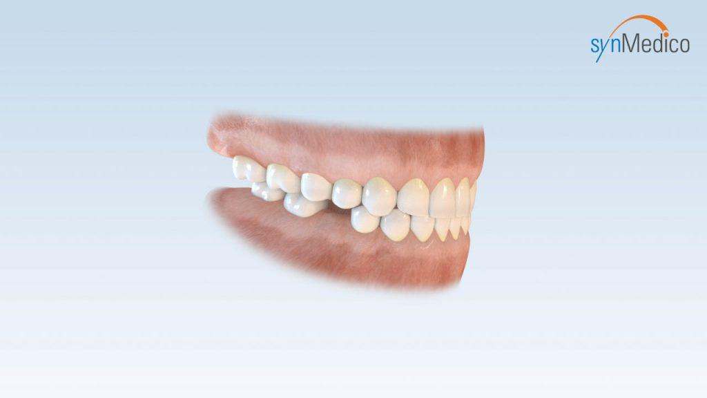 Einfache Zahnlücke